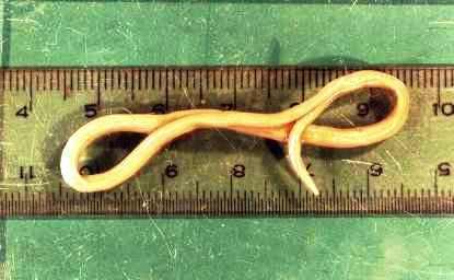 лечение тройчаткой от паразитов отзывы